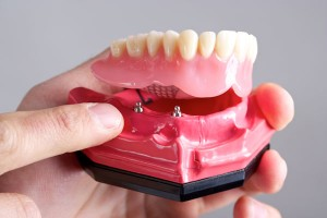 removabledentures